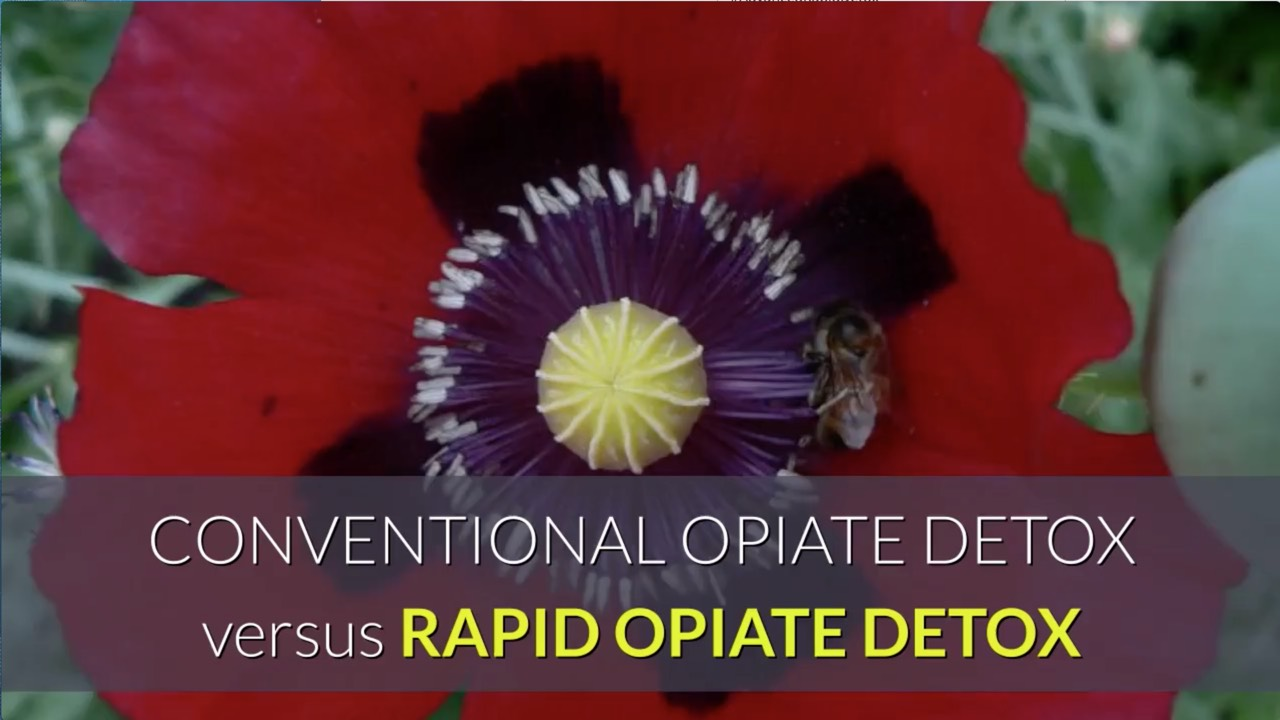 Convention avs rapid opiate detoxification treatment